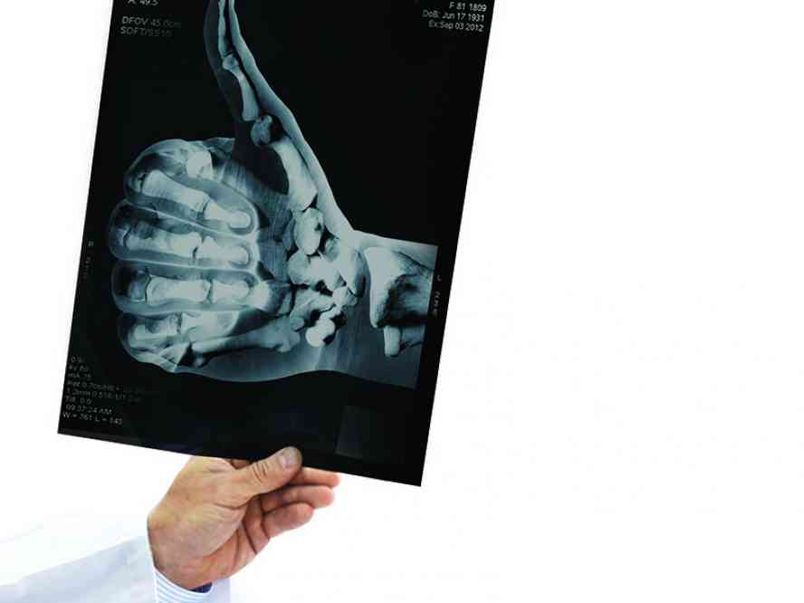 Мрт коленного сустава ярославль диспия тазобедренных суставов у грудничков